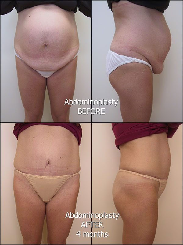 175_AD_Abdominoplasty_labelled