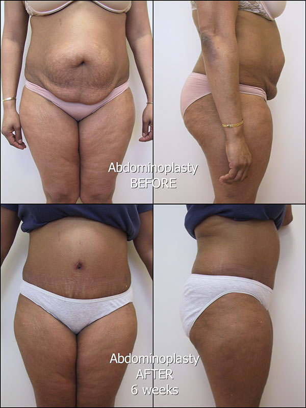 175_IM_Abdominoplasty_bk_labelled