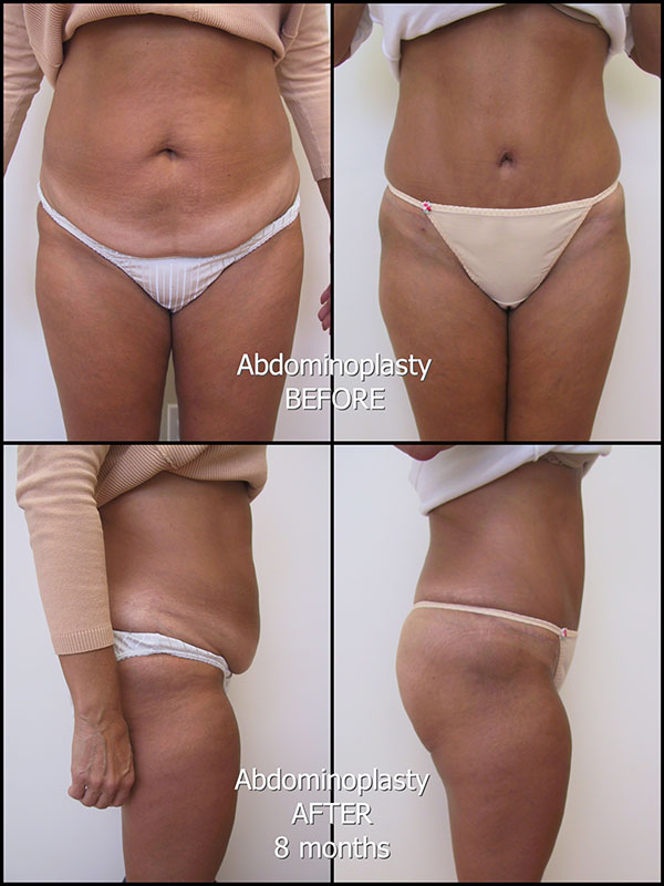 175_LS_abdominoplasty_labelled