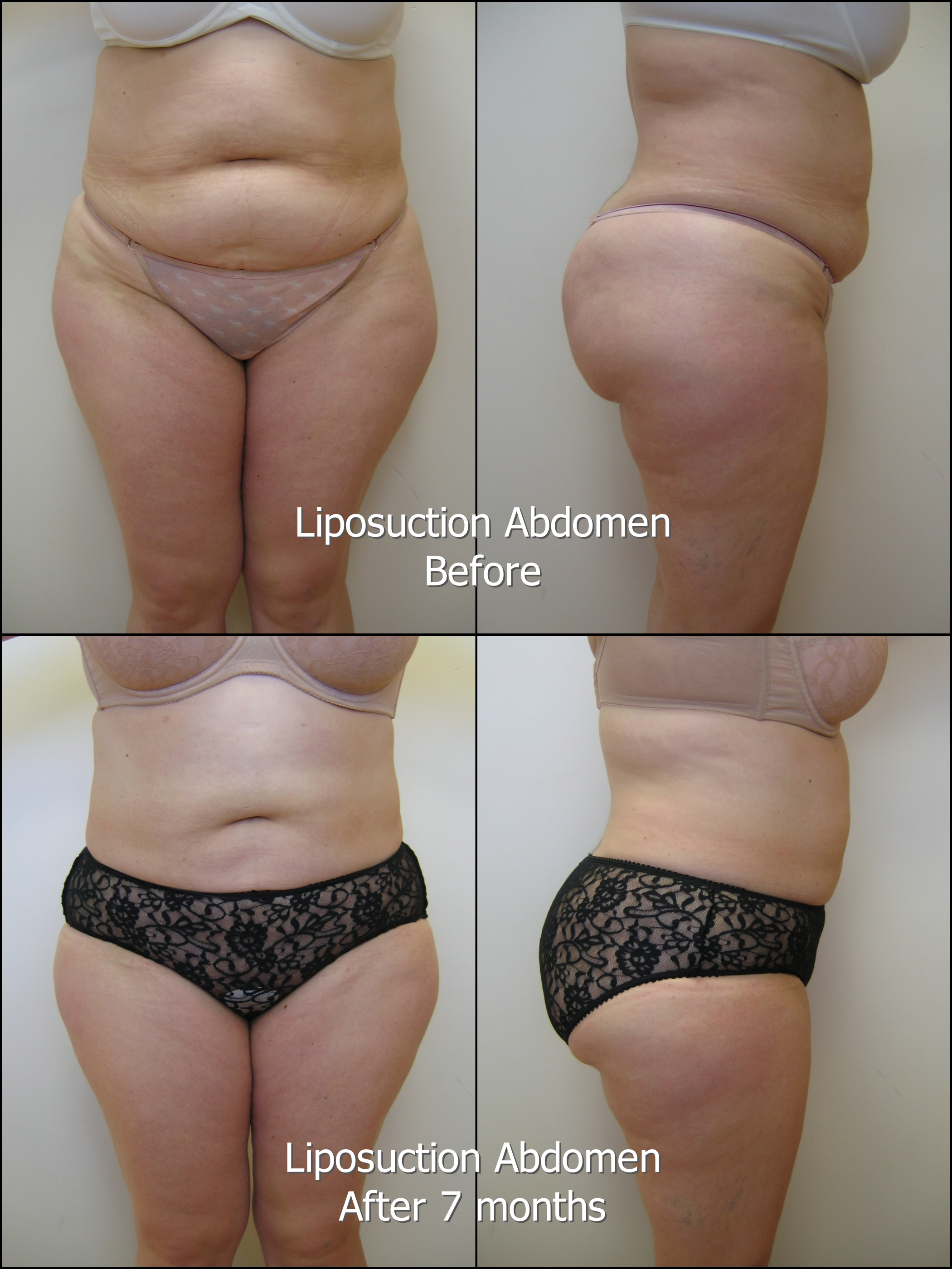 801_PB_Liposuction_Abd_labelled.jpg