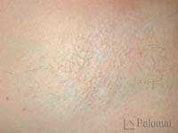 828_hair_removal_image_after