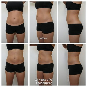 Coolsculpting_HS_unlabeled_Fotor